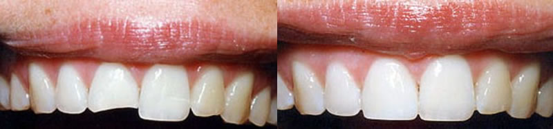 Before-After Cosmetic Bonding