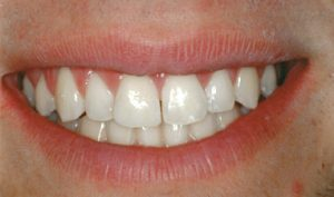 After Cosmetic Bonding- Smile Gallery