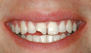 Before Cosmetic Bonding- Smile Gallery