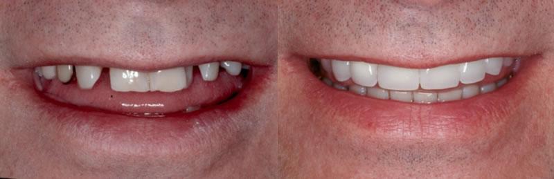 Before-After Bridges