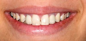 After Dental Bridge- Smile Gallery