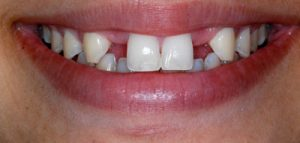 Before Dental Bridge- Smile Gallery