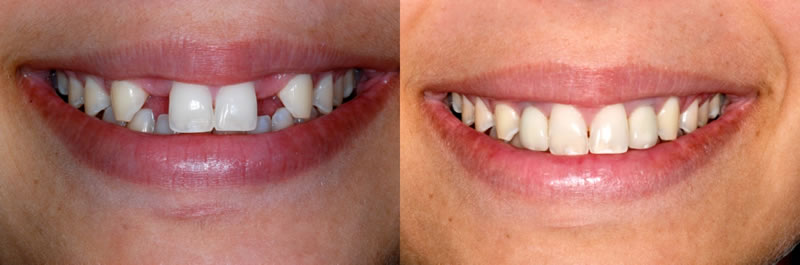 Before-After Dental Crowns