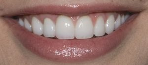 After Dental Crown- Smile Gallery