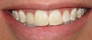 Before Dental Crown- Smile Gallery