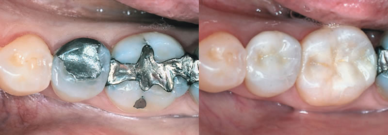 White Fillings-Thornhill Family Dental