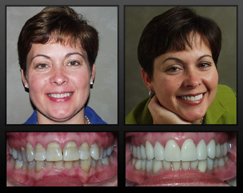 Full Mouth Rehabilitation- Thornhill Family Dental