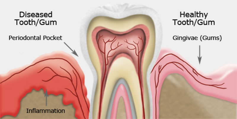 Gum Disease Therapy- Thornhill Family Dentistry