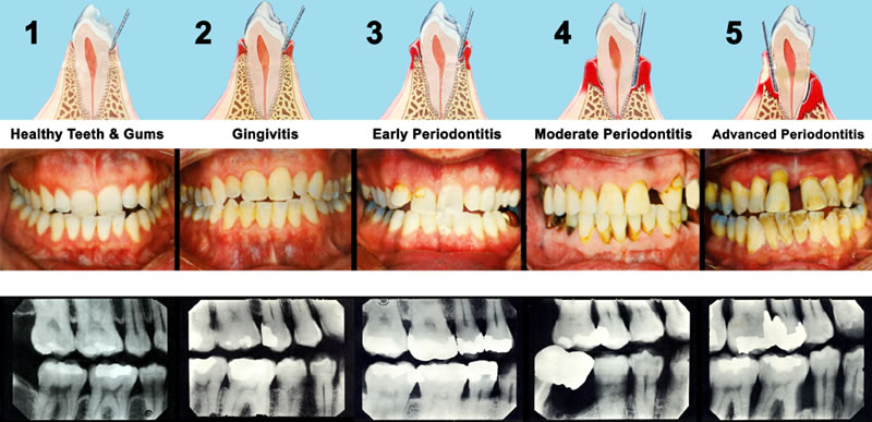Gum Disease Therapy Procedure