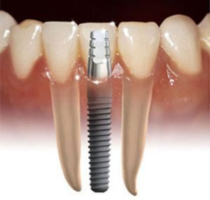 Dental Implants- Thornhill Family Dental