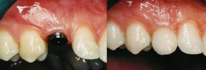 Before-After Implant Dentistry