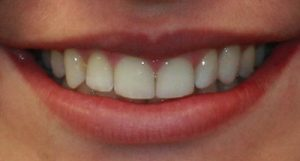 After Dental Implants- Smile Gallery