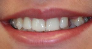 Before Dental Implants- Smile Gallery