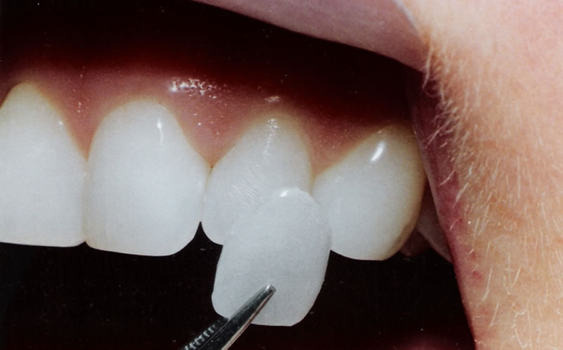 Porcelain Veneers- Thornhill Family Dental