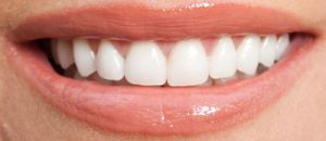 After Porcelain Veneers- Smile Gallery