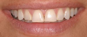 Before Porcelain Veneers- Smile Gallery