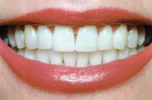 After Teeth Whitening- Thornhill Family Dental