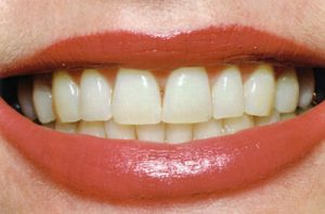 Before Teeth Whitening- Thornhill Family Dental