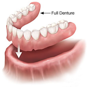 Full Dentures- Thornhill FAmily Dental